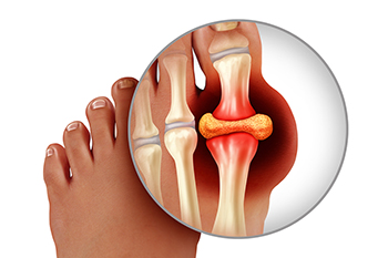 Strategies to Help Prevent Gout
